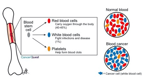 blood-cancer_0.jpg