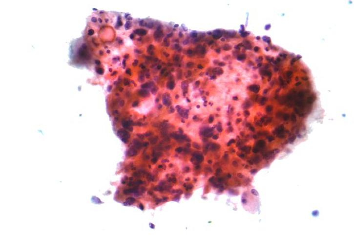 Malignant Cells Found in Sputum