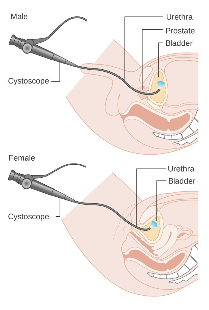 "The first cystoscope, an instrument that is inserted through the urethra and used to detect cancer of the bladder, was created by Maximilian Carl Friedrich Nitze. 11. Reuter, M.A., and Reuter, H.J. ""The Development of the Cystoscope."" The Journal of Urology. 159 (1998): 638-640. [PUBMED]"