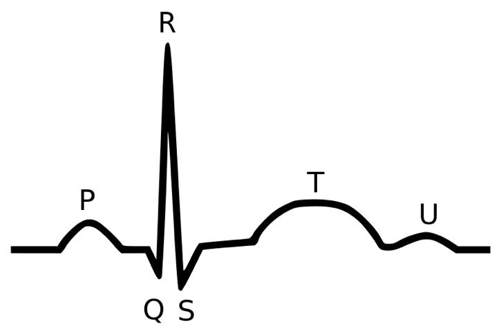 Diagram of an EKG tracing with parts labeled