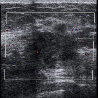 "Ultrasound imaging was used for the first time for medical diagnostics, specifically the identification of intracranial tumors, by Karl and Friederich Dussik. 11. Shampo, M.A. and Kyle, R.A. ""Karl Theodore DussikPioneer in Ultrasound."" Mayo Clinic Proceedings. 70 (1995): 1136. [PUBMED]"