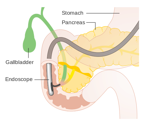 "The first endoscopic retrograde cholangio-pancreatography (ERCP), an endoscopic procedure used to diagnose cancer in the bile ducts and pancreas, was performed by Dr. William McCune. 11. McCune, W.S. et al. ""Endoscopic Cannulation of the Ampulla of Vater: A Preliminary Report."" Reprinted in: Gastrointestinal Endoscopy. 34 (1988): 278-280. [PUBMED]"
