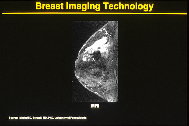 "Magnetic resonance imaging (MRI) is based on signals obtained from different tissue types when they are subjected to a strong magnetic field. The signals are used to create digital images of the body. MRI is used to diagnose several different cancers and many other medical conditions. They were developed by Paul Lauterbur and Peter Mansfield. 12 In 2003 the developers won the Nobel prize in medicine for their work.31. Britannica Online. Encyclopedia Britannica. Accessed 13-17 June. 2005 [http://www.eb.com]2. Schnall, M. and M. Rosen, Primer on imaging technologies for cancer. 2006 Jul 10;24(20):3225-33 [PUBMED]3. Rlederer, Stephen J. ""MR Imaging: Its Development and the Recent Nobel Prize."" Radiology. 231 (2004): 628-631. [PUBMED]"