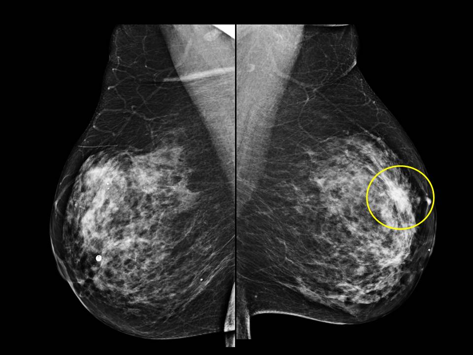 Breast Cancer on Mammogram