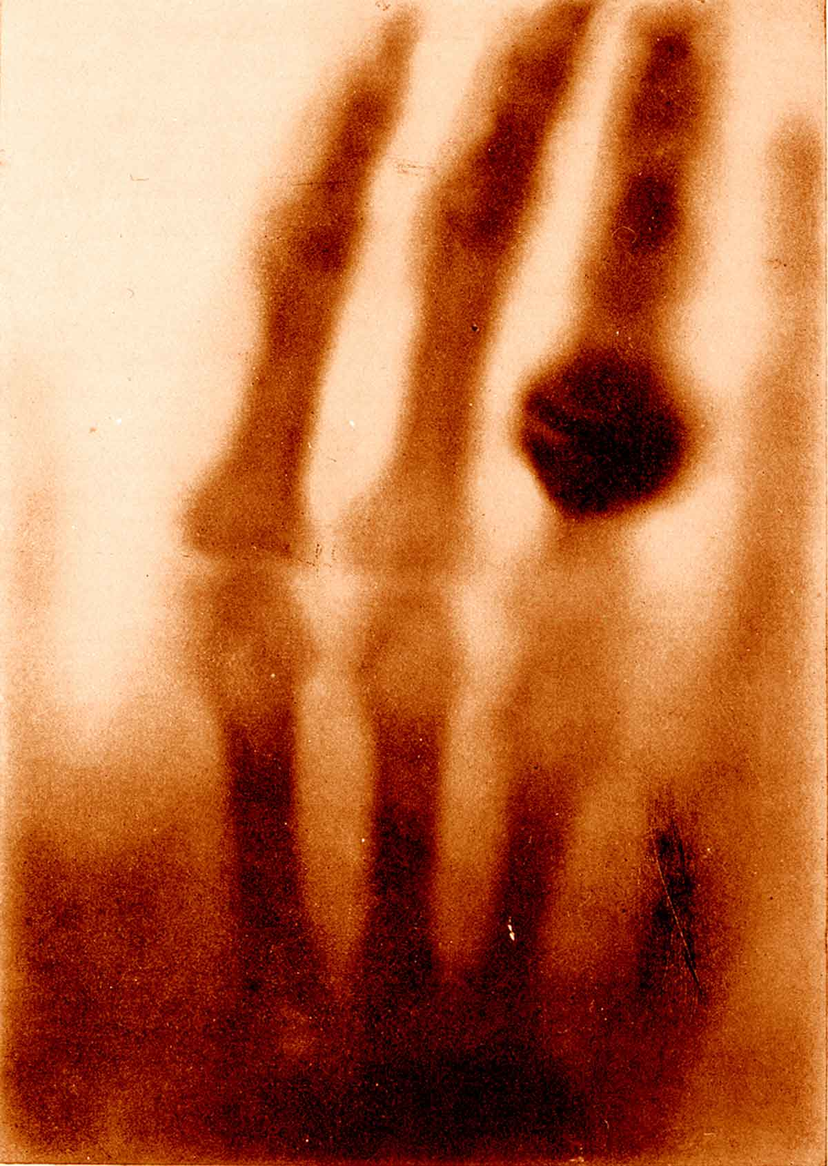 Wilhelm Conrad Roentgen discovers x-rays. This discovery is thought of as one of the greatest technological accomplishments of all time. It made a huge impact on cancer detection and treatment.Four years later (1899) Tage Anton Ultimus Sjogren successfully treats cancer with x-rays.11. Morton, Leslie T., and Moore, Robert J. A Chronology of Medicine and Related Sciences. Aldershot, England: Scholar Press, 1997