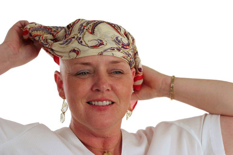 Woman with alopecia wearing a bandana.