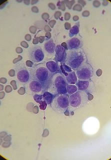 canine transmissible veneral tumor (CTVT) cytology (Wikimedia Commons)