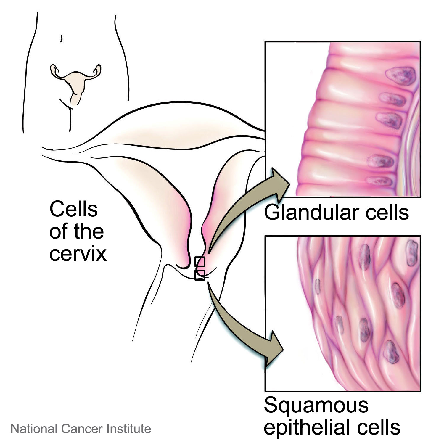 Cervical cancer cancerquest types of ccuart Choice Image