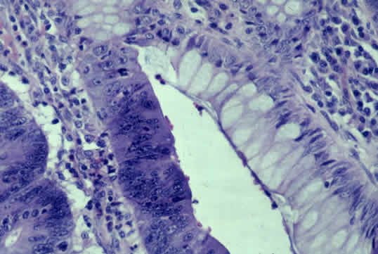 colon cancer pathology