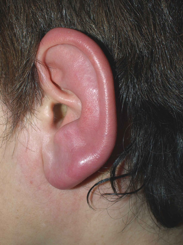 inflamed ear
