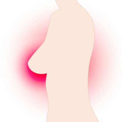 A breast in profile, surrounded by red - indication of cancer