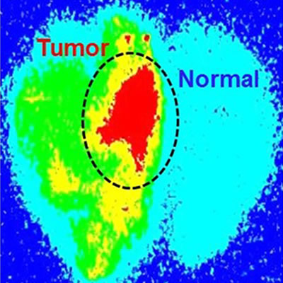 Cancer imaging showing normal and cancer tissue