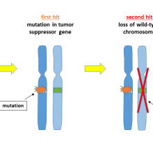 Two-hit hypothesis of cancer development depicted