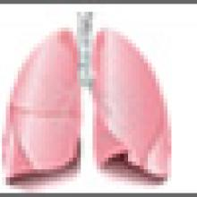 A 'Gold Standard' For Lung Cancer Detection?