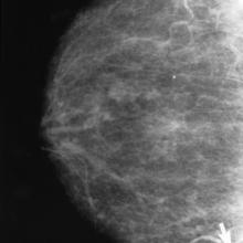 Cancer mammography.