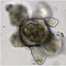 intestinal organoid grown from stem cells