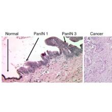 Progression of pancreatic cancer