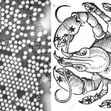 polio viruses next to a drawing of  the crab (astrological sign)